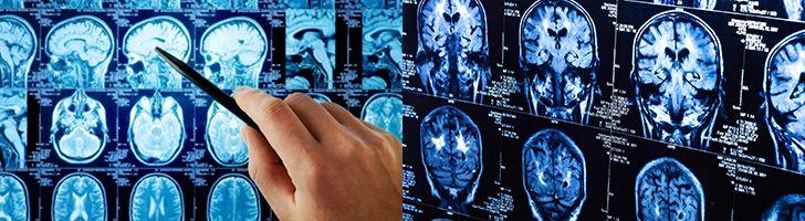 Повышенное внутричерепное давление представляет из себя давление оказываемое мозговой жидкостью выделяемой спинным мозгом на ткани мозга. Для удобства врачи используют цифровое значение данного показателя. Так по установке врачей нормальным показателем внутричерепного давления принято считать 11 — 16 мм.рт.ст.  #глаза #давление #лечение #симптомы #голова