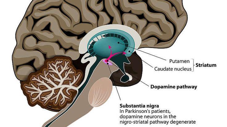 Was verursacht Parkinson?Morbus Parkinson ist eine progressiv verlaufende, chronische und neurodegenerative Krankheit. Nach Alzheimer ist sie die zweithäufigste Nerven zerstörende Erkrankung. Bei Parkinson werden Nervenzellen im Gehirn, die den Neurotransmitter – also den Botenstoff – Dopamin produzieren, zerstört. Das führt dazu, dass die Nachrichten aus dem Gehirn nicht gleichmäßig an die Muskulatur im Körper weitergegeben werden. Die Bewegung wird dadurch eingeschränkt....