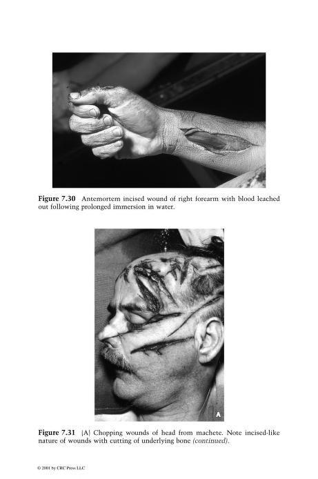 atlas of forensic pathology pdf