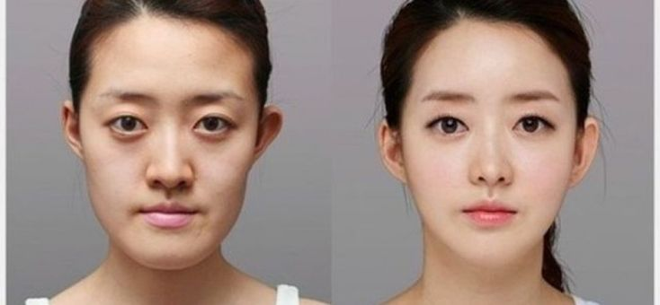 Double Eyelid Surgery Cost In…