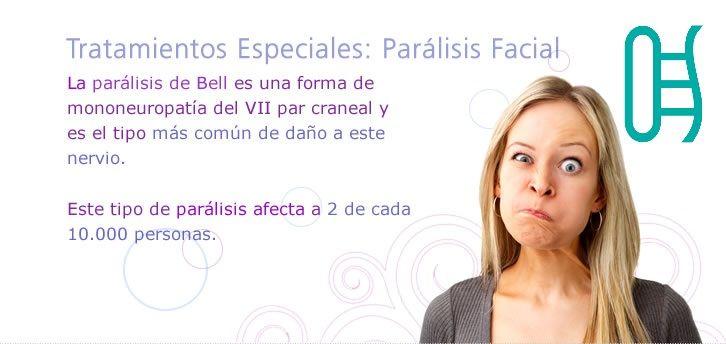 La parálisis de Bell es un episodio de debilidad o parálisis temporal de los músculos de un lado de la cara. Estos músculos están controlados por los nervios faciales. Puesto que hay un nervio facial en cada lado de la cara y la parálisis de Bell suele afectar solamente a uno de los dos nervios, las personas que la padecen suelen experimentar rigidez o debilidad en un lado de la cara.