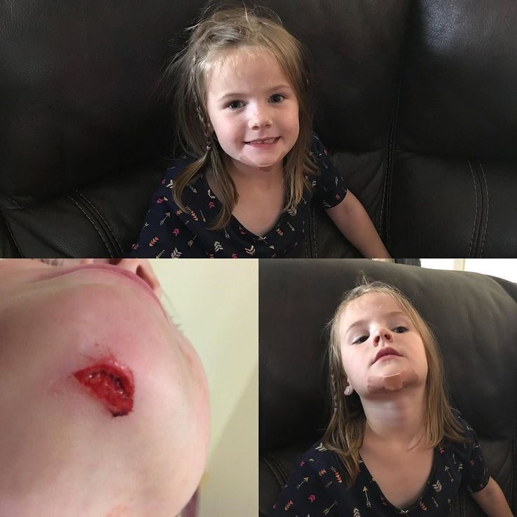 Miss E had a little mishap at school today. A few stitches and shes as good as new.