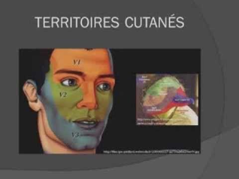 Pathologies diverses: névralgie faciale | Médecine et Santé