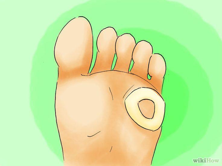 Likdoorns op de voeten verwijderen - wikiHow