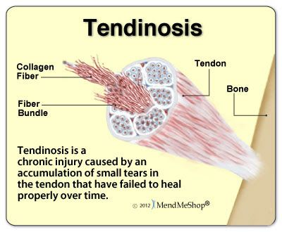 The term tendinosis refers to the non-inflammatory ...