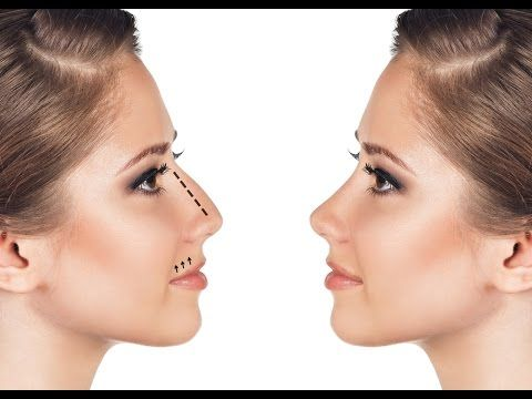How to Make Your Nose Thinner Naturally at Home