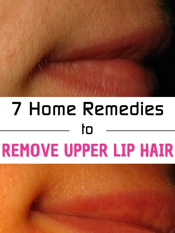 Removing Upper Lip Hair Naturally at Home - Clare K