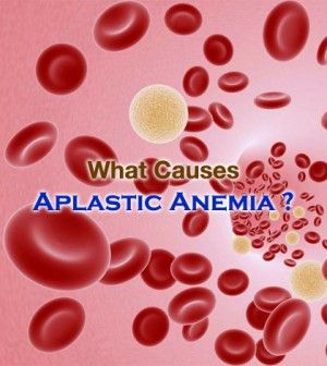 Find Out What #Causes #Aplastic #Anemia -    #WhatCausesAplasticAnemia #CausesOfAnemia #AplasticAnemia