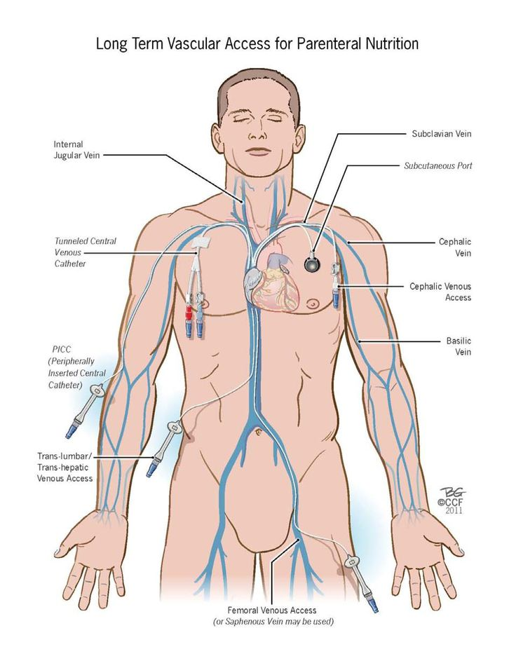 Long Term Vascular Access http://s3-patients.gi.org/files/2011/11/enteral_parenteral_fig3.jpg
