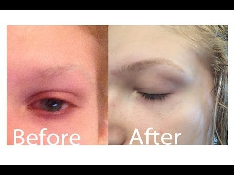 How To Grow Out Very Sparse Eyebrows Quickly