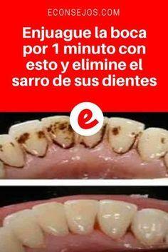 Sarro de dientes   Enjuague la boca por 1 minuto con esto y elimine el sarro de sus dientes   Este simple tratamiento casero, elimina la placa dental y el sarro de sus dientes. Y además es un excelente blanqueador dental. ¡Aprenda aquí! ↓ ↓ ↓