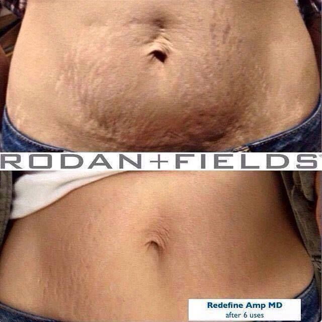 Rodan + Fields AMP MD Roller and Night Renewing Serum combo not only tackles WRINKLES and SCARS but also those unwanted STRETCH MARKS. https://michellemj.myrandf.biz/Shop/Product/AAAPS01 #60DayMoneyBackGuarantee #stretchmarks #antiaging #AMProller #rodanandfields