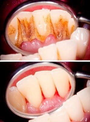 If you haven't had your teeth cleaned in the last 3 to 6 months you could be spreading infection to the rest of your body. Please prevent oral systemic health issues by getting your teeth cleaned regularly from your dentist or hygienist.