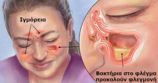 Αυτή είναι η Σπιτική Συνταγή που Ξεβουλώνει Αποτελεσματικά την Μύτη και Θεραπεύει την Ιγμορίτιδα με Φυσικό Τρόπο!