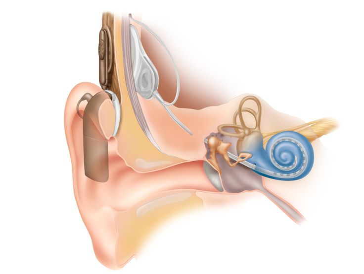 How a Cochlear Nucleus 5 Works. Unlike hearing aids, which simply amplify sound at the outer ear, a cochlear implant can bypass the damaged part of the ear to directly stimulate the hair cells within the cochlea. The Nucleus System delivers sound in a way that mirrors natural hearing.