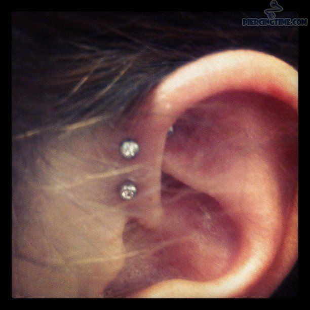 double anti-helix piercing