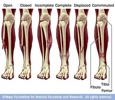 Open= bone breaks through skin. Closed=bone breaks but there is no open wound in the skin. Displaced=bone snaps into two or more parts and moves so that the two ends are not lined up straight. Comminuted= bone breaks into many pieces.