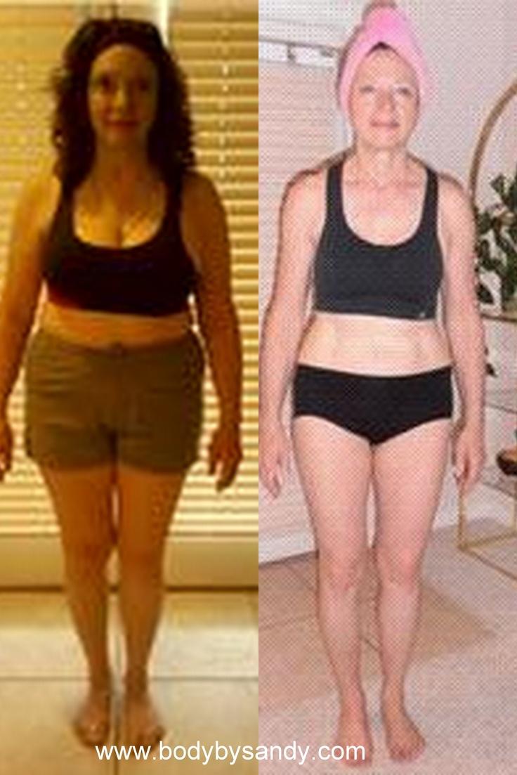 Weight loss surgery in lafayette la