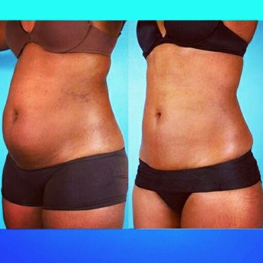 #UltrasonicLipo and #LaserLipo. More and more #lipo practioners are utilizing multiple technologies to assist with #liposuction.  One preferred technique is starting with ultrasonic lipo using a device like #vaserlipo to remove fat in bulk then finishing the procedure with a laser lipo device like #Smartlipo to smooth out the area and tighten the skin. To find clinics in your area and the technology they use visit liposculpturetalk.com