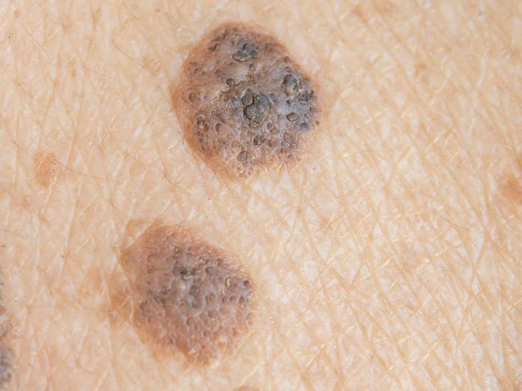 Is it seborrheic keratosis or skin cancer? - Seborrheic keratosis is a noncancerous condition that can look a lot like melanoma. In this article, learn about the difference and when to see a doctor.