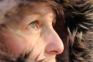 Suchá pleť se vyznačuje sníženou tvorbou kožního mazu. Je méně odolná vůči vnějším vlivům. Kůže je podrážděná, trpí pocitem pnutí, póry jsou stažené, proto jí musíme věnovat zvýšenou péči vpodobě hydratace a promašťování, jinak se na povrchu budou tvořit šupinky. Nesprávnou péčí můžeme přispět ktvorbě lišeje a na vysušených místech se kůže začne olupovat. Tento …