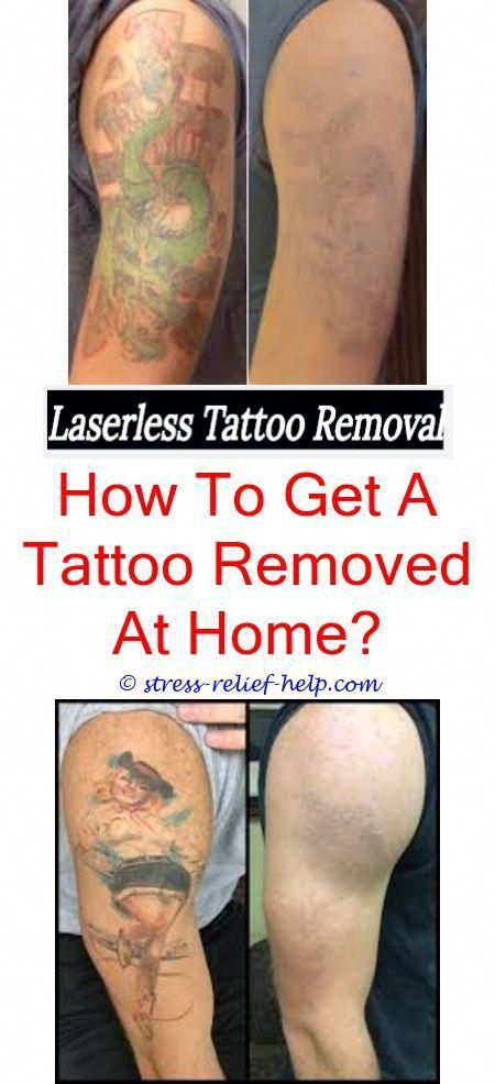 Picosure Laser Tattoo Removal Near Me How Are Permanent Tattoos