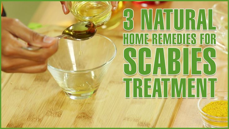 Home Remedy For Scabies: scabies home treatment scabies home