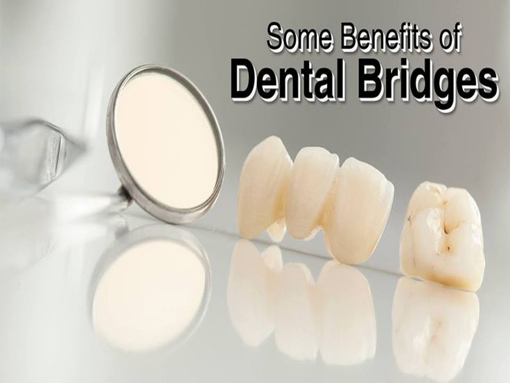 Benefits of #dental #bridges:- Helps to restore your smile- Distributes equal forces to all teeth- Easy to chew food and speak- Replaces your missing teeth- Reduces bone loss and maintains structure in face- Not removable and less expensive