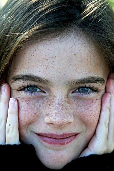 ♀ Freckles Face Portrait