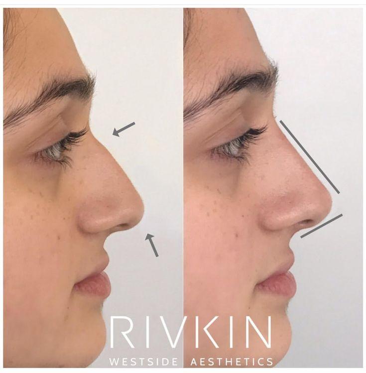 natural nose job reddit