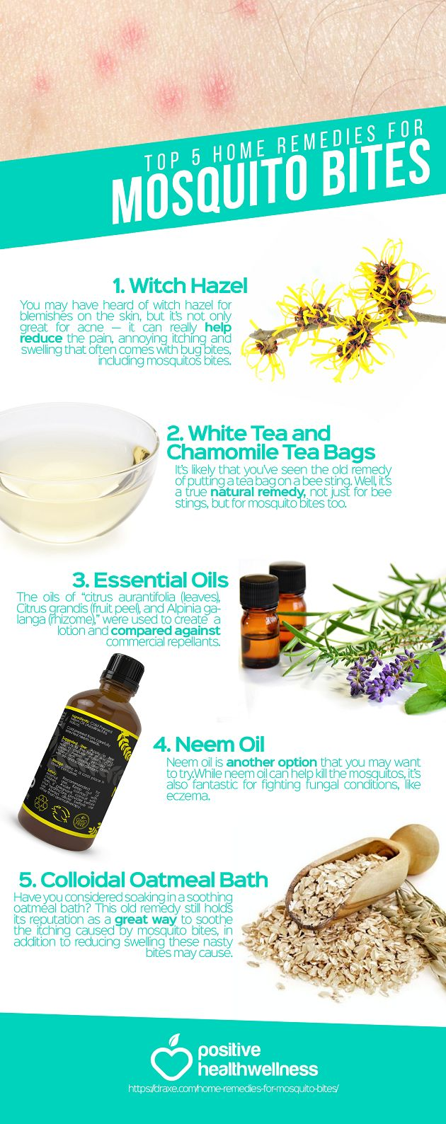 healthyhomosapien: Top 5 Home Remedies For Mosquito Bites