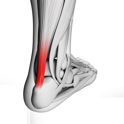Achilles Tendonitis :: Learn about symptoms and treatment of this painful sports ankle injury.: Sports Injury, Sports Ankle, Footsmart Blog, Sports Medicine, Achillestendonitis, Muscle, Ankle Injury, Healthy Feet, Pain Sports