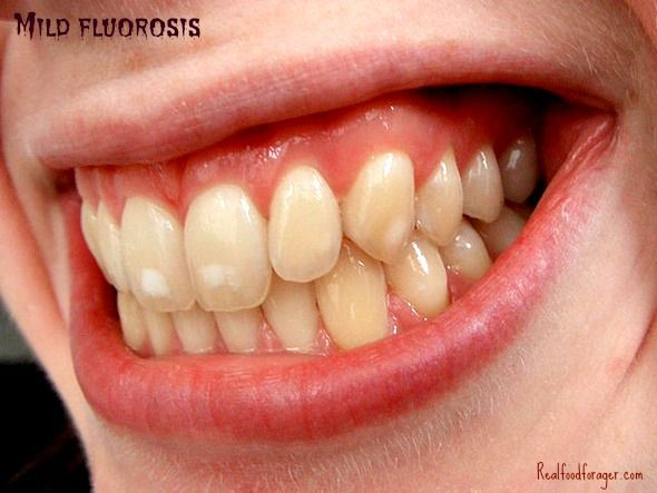 Why You Should REFUSE Fluoride Treatments For Your…