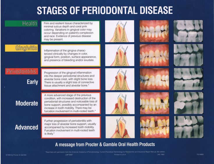 Stages of periodontal disease. #dentistry