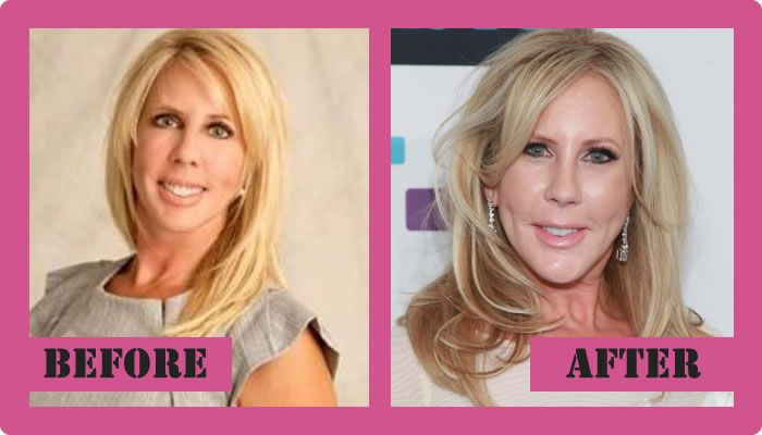Vicki Gunvalson Plastic Surgery Before And After Vicki Gunvalson Plastic Surgery #VickiGunvalsonplasticsurgery #VickiGunvalson #gossipmagazines