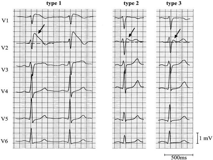 Brugada Syndrome - at risk for sudden death