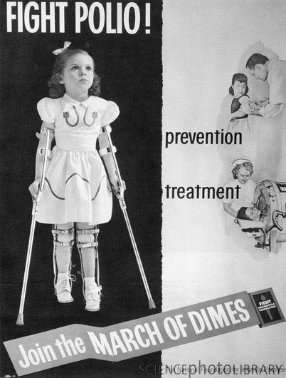 polio leg braces fundraising history - Google Search