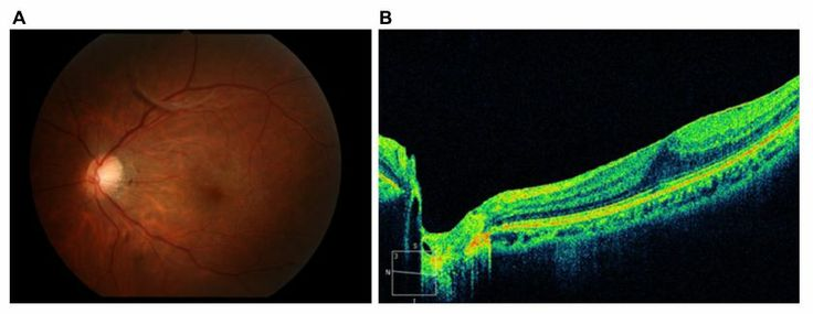 Figure 15 A partial posterior vitreous detachment (P-PVD) (M) and absence of a shallow posterior vitreous detachment (PVD).
