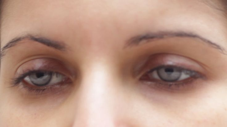 New 2013 brightocular implant with limbal ring and textured surface features.