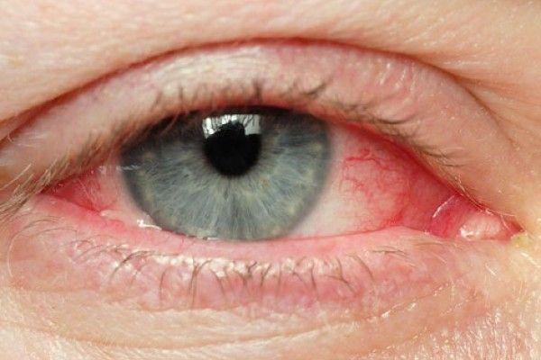 Tips naturales para tratar los ojos irritados