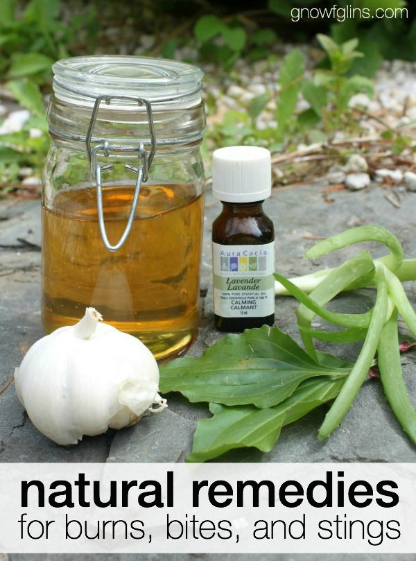 Natural Remedies for Burns, Bites, Stings.  Summer goes hand in hand with outdoor adventures. With the sun shining and the lure of swimming, kids are free to spend their days playing outside. But burns, bites, and stings can stop that summer fun dead in its tracks. Thankfully, several natural remedies will have you back to enjoying summer activities in no time!
