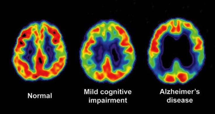 Scientists Stumble Upon Alzheimer's Treatment While Trying To Cure Diabetes