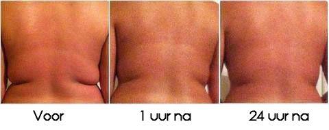 Last van vetrolletjes? Wrap, wrap en wrap! www.bodywrapsnederland.nl