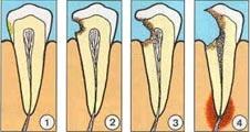Tote oder entzuendete Zahnwurzel kann fuer den Koerper GEFAEHRLICH werden!!! >>>>>> http://www.optimale-zahnbehandlung.ch/index.php/zahnkrankheiten?start=30