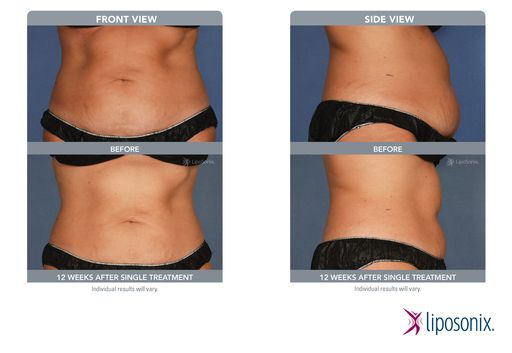 liposonix ultrasound before after photo! Successful treatment with no complications