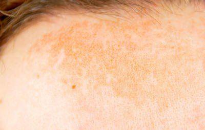 Dr. Pimple Popper dark spot treatment