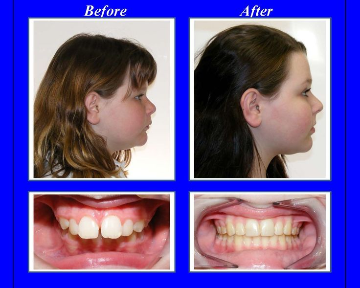 Severe Overbite Before And After Braces