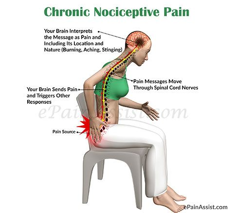 Chronic Nociceptive Pain