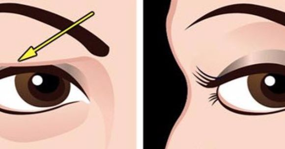 how to make eyelids bigger naturally