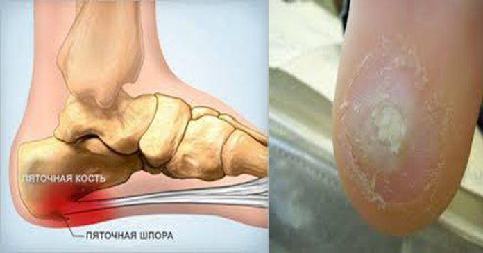 После 1 процедуры Вы избавитесь от шпор, вариоза и остеохондроза! http://bigl1fe.ru/2017/03/19/posle-1-protsedury-vy-izbavites-ot-shpor-varioza-i-osteohondroza/
